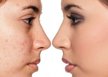Лазерно лечение на акне и белези