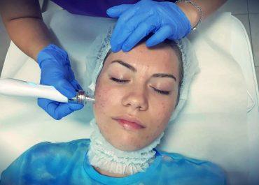 Цялостно почистване на лице и черни точки – подходящо за всички типове кожа
